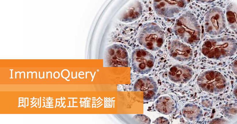 ImmunoQuery資料庫